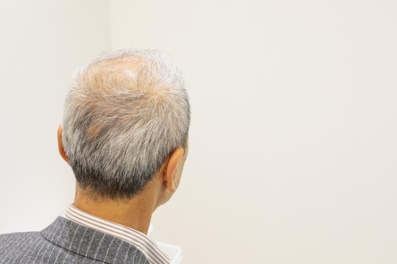福岡県の植毛クリニックに電話相談した結果